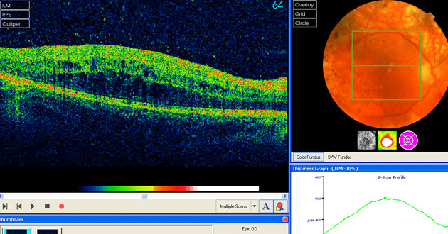 OCT showing an increase in macular oedema