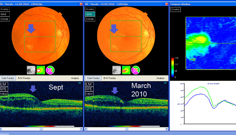 circinate retinopathy getting worse over 6 months, despite laser and good control