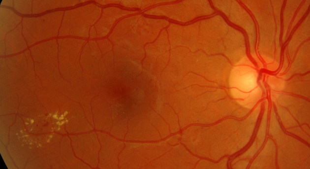 circinate retinopathy, what will happen in 3-5 years?